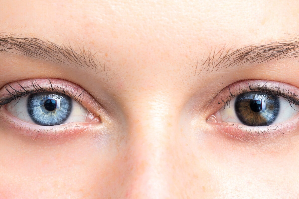 Cambios en el color de los ojos.