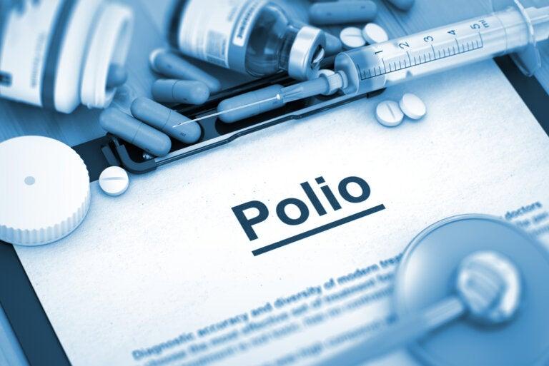 7 secuelas de padecer poliomielitis