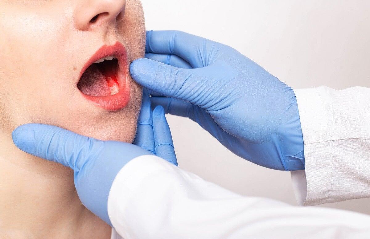 Síntomas y causas de la periodontitis