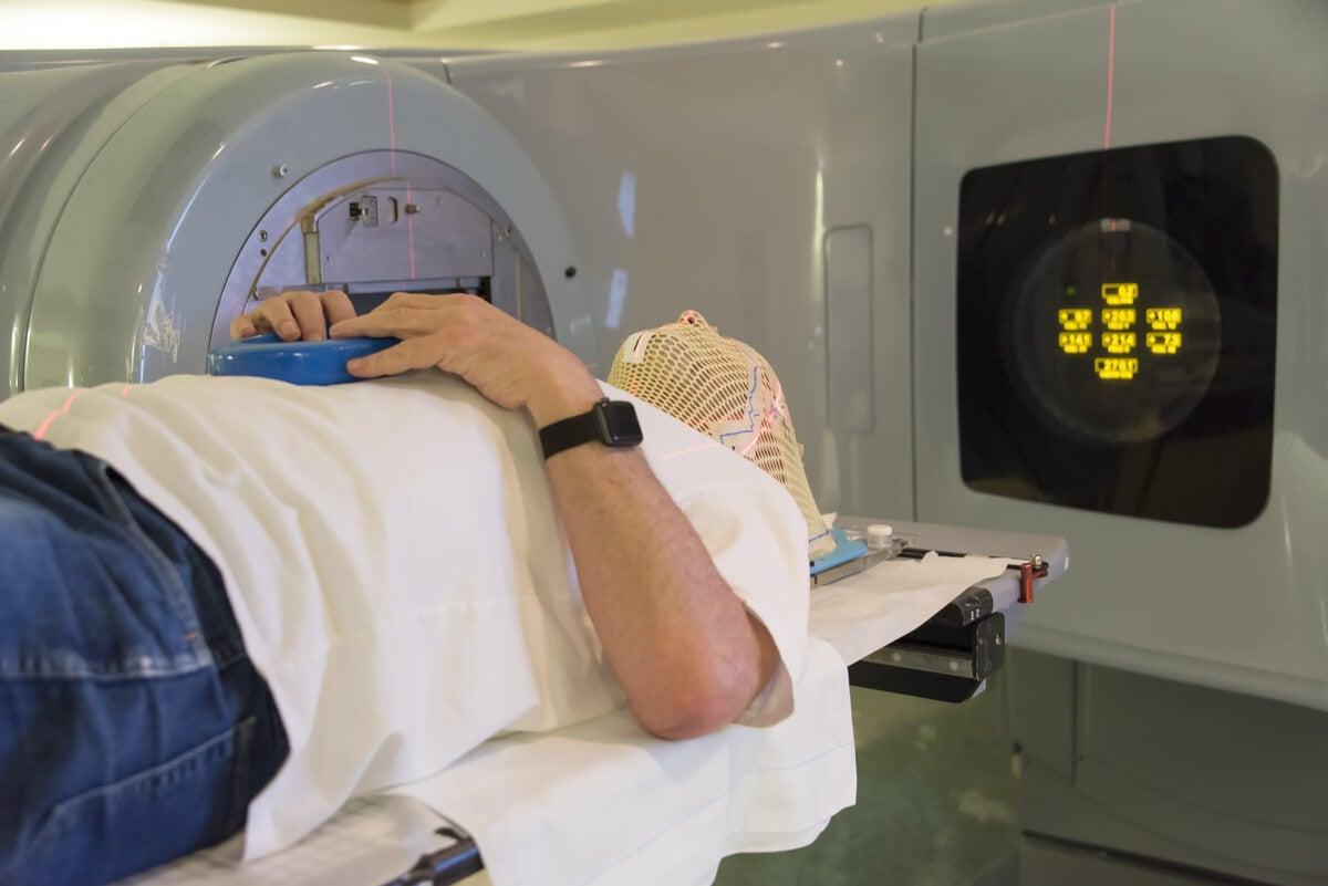 Radioterapia para meningioma.