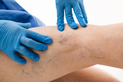 exercitarea de la varicoză varicoză pe picioare