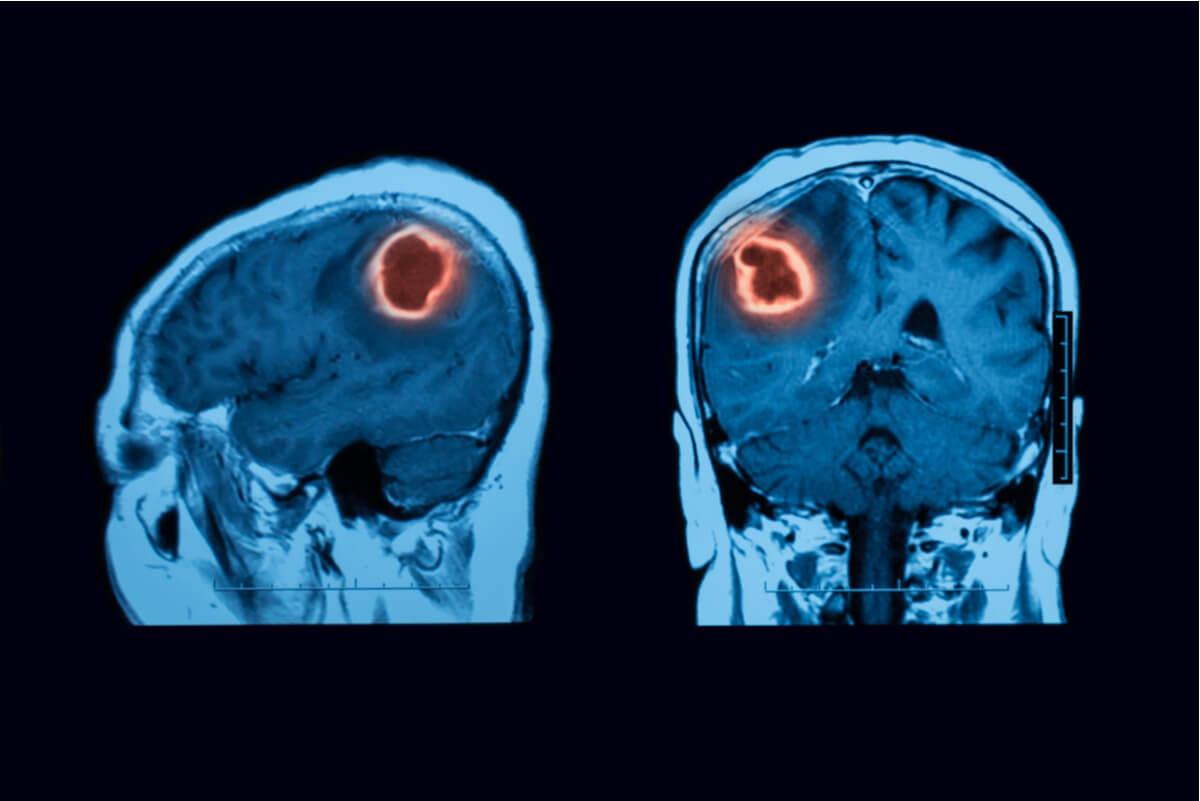 RMN de cerebro con hematoma subdural.
