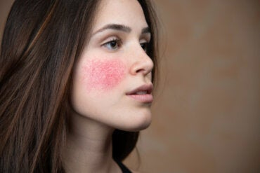 10 causas de enrojecimiento facial