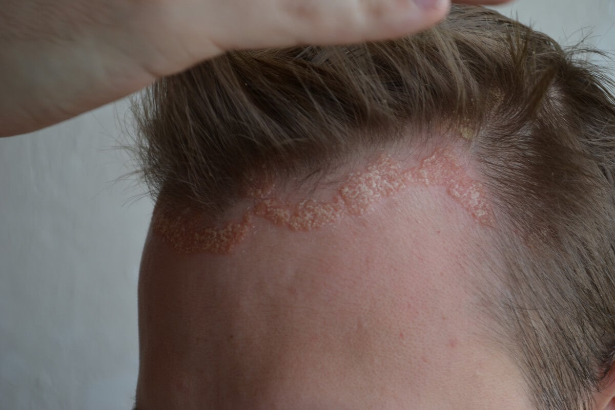 Psoriasis on the scalp.