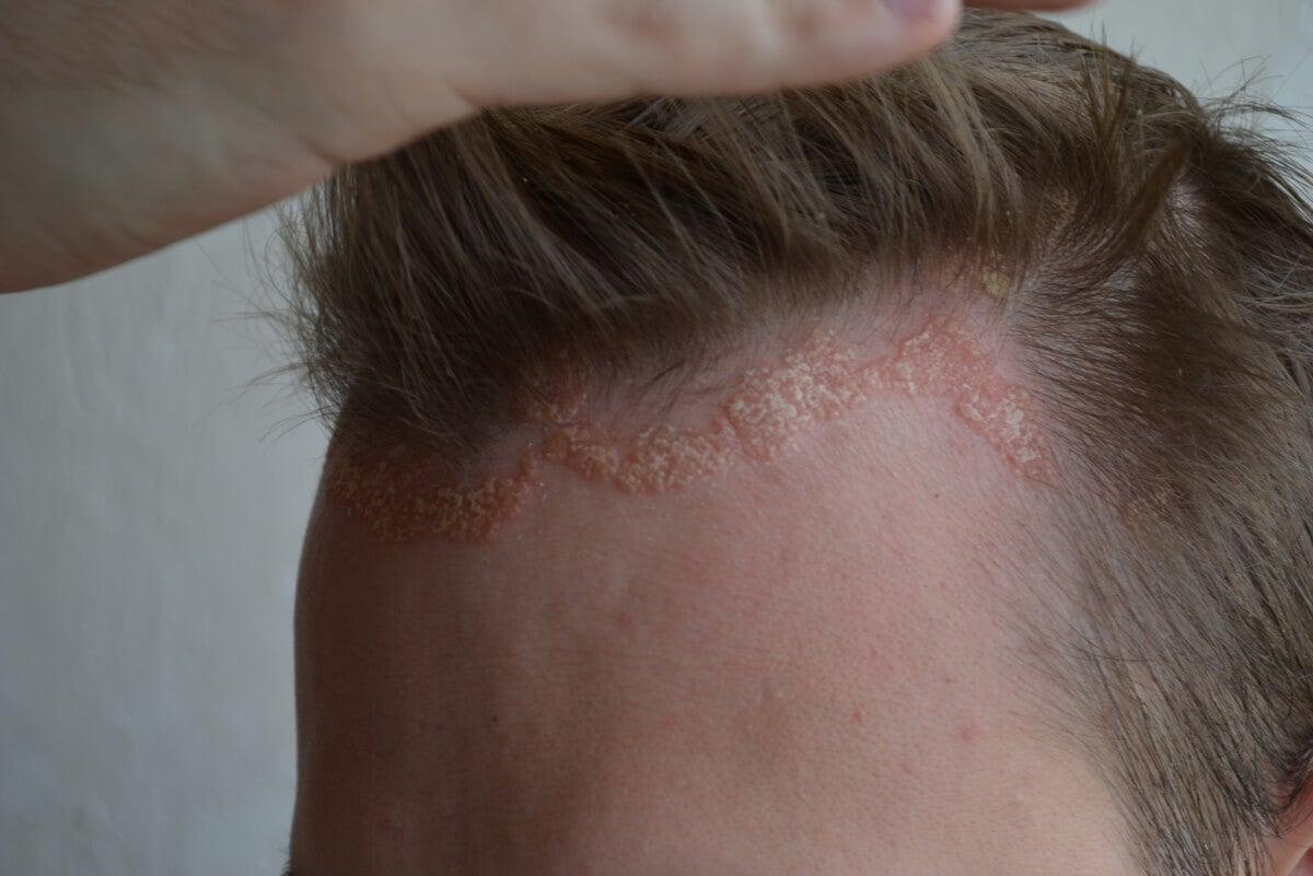 Psoriasis en cuero cabelludo.
