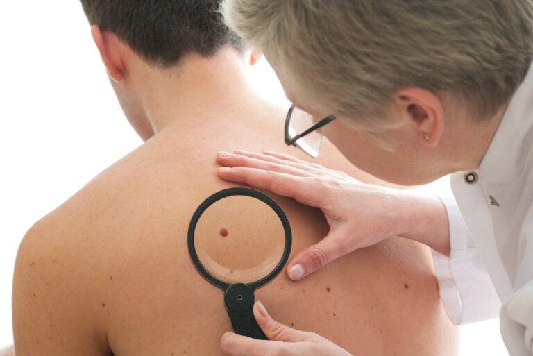 Tratamiento del cáncer de piel (melanoma)