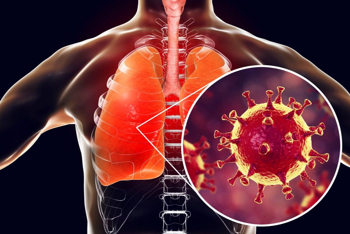 Infección en los pulmones.