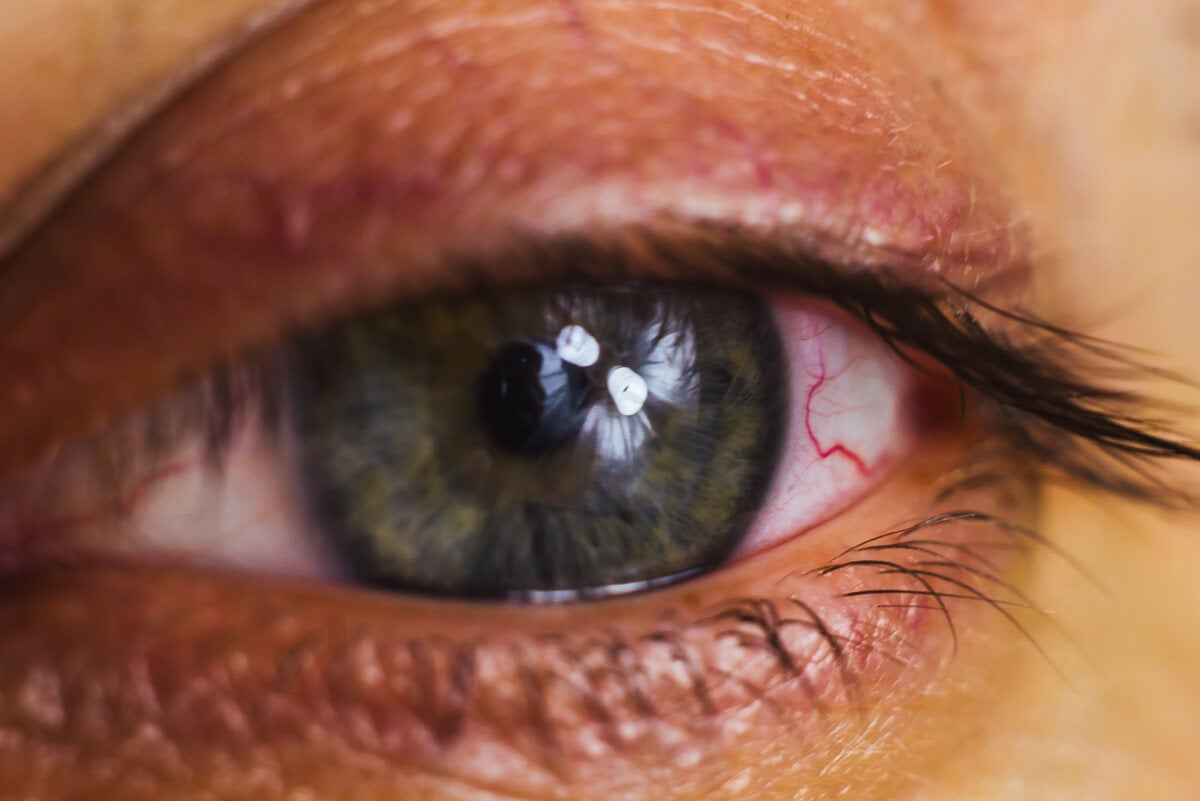 Lágrima en el ojo seco en invierno.