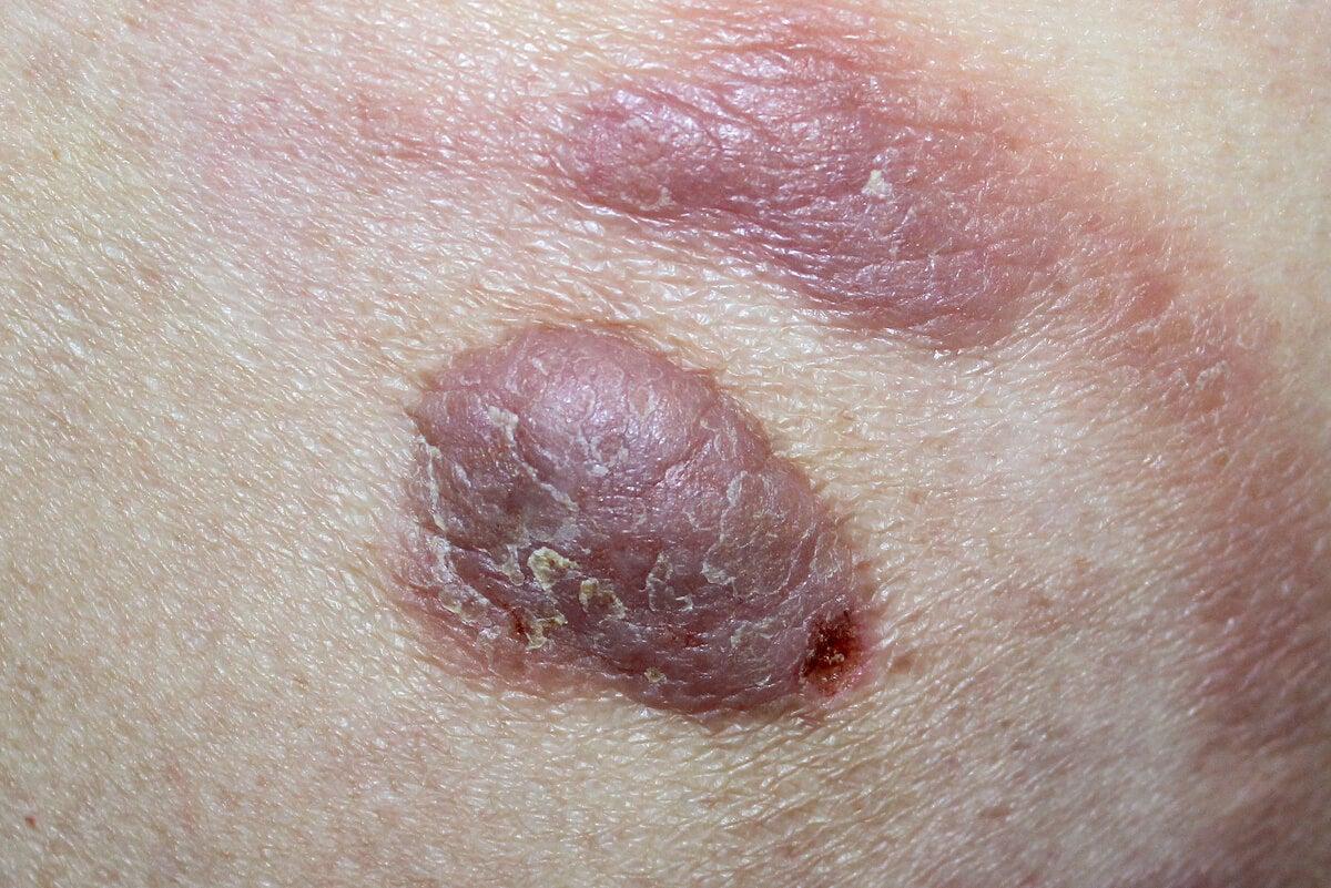 Lesiones del linfoma cutáneo.