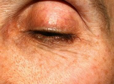 Meibomianitis: causas, síntomas y tratamientos
