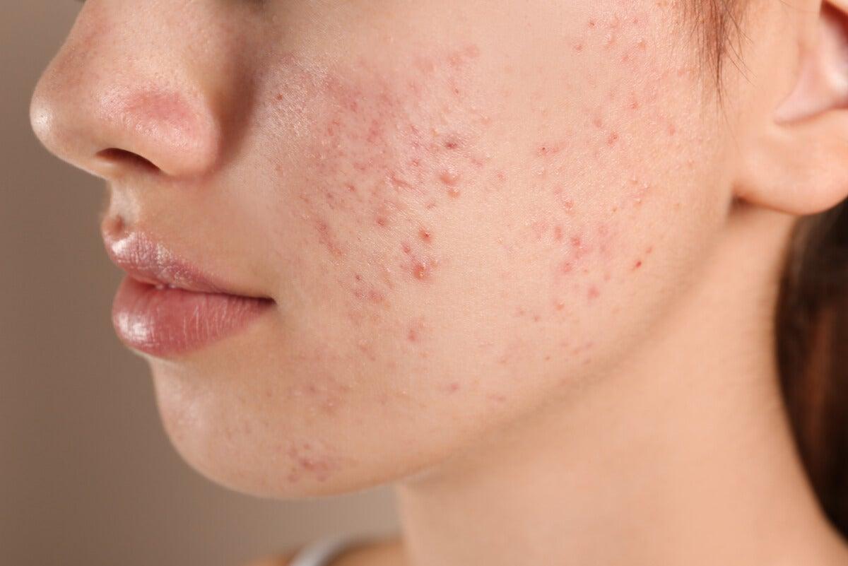 Mejilla de mujer con acné.