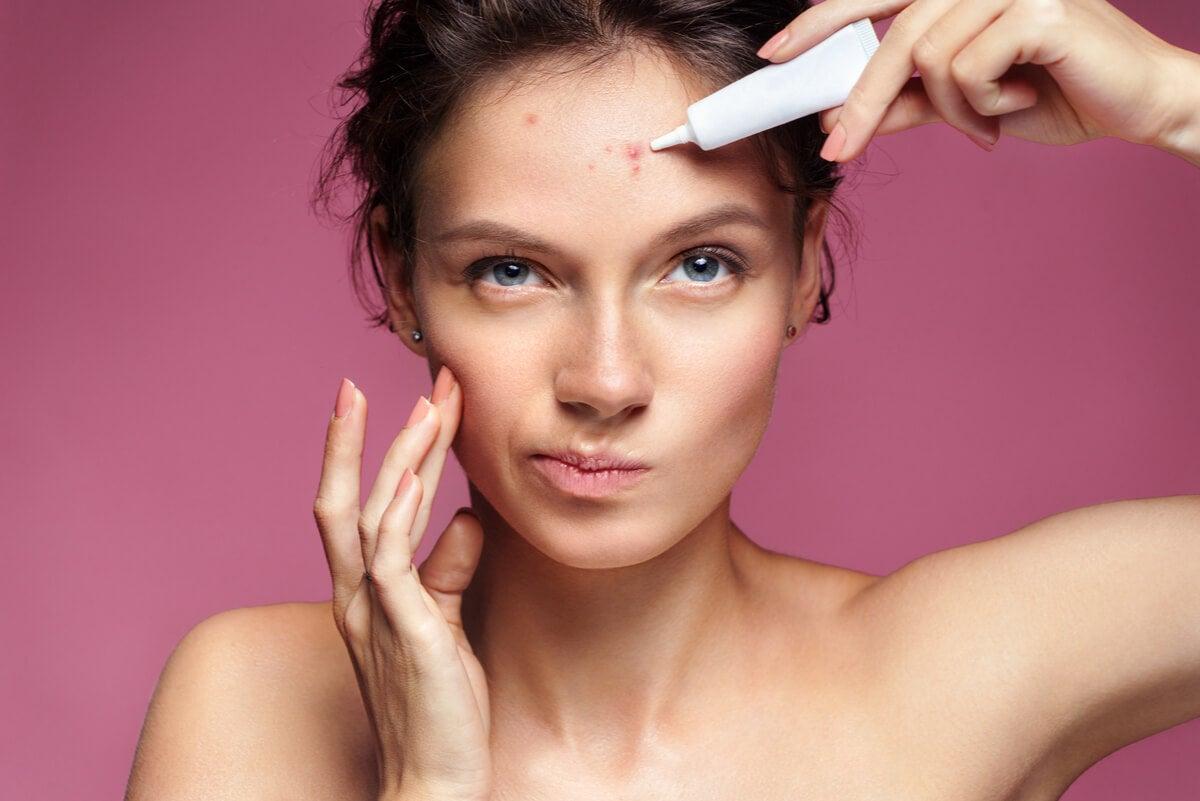 Mujer tratándose el acné.