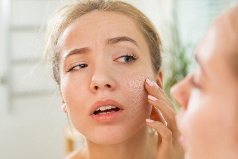 ¿Cuáles son las causas de la piel seca?
