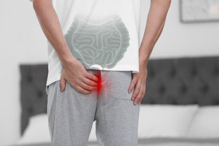 ¿Qué es el prolapso rectal y cuáles son sus causas?