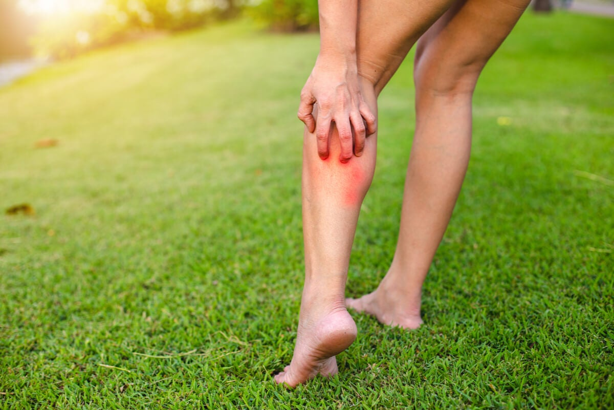 Rascado de la pierna en una mujer.