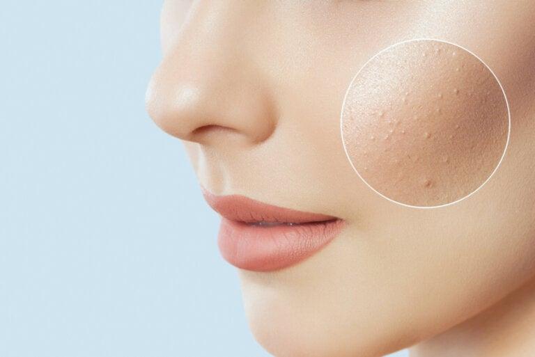 Beneficios del ácido azelaico para la piel