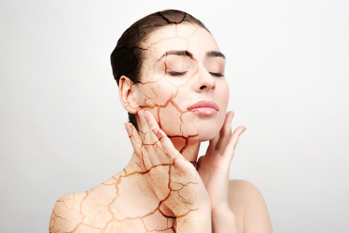 Mujer con piel seca en el rostro.