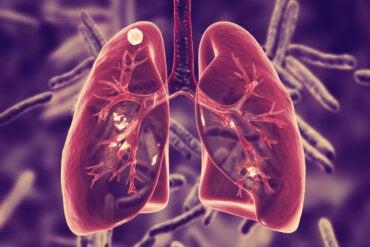 ¿Qué es la tuberculosis pulmonar y cuáles son sus síntomas?
