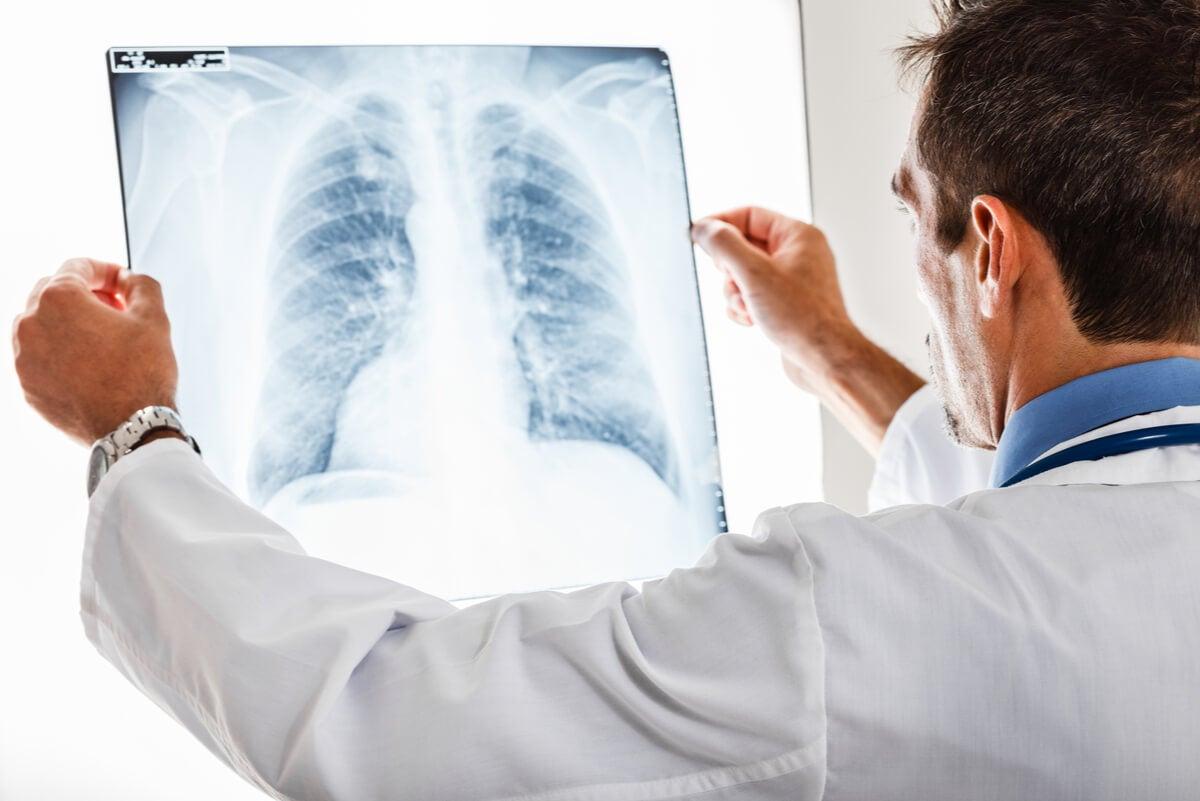 Radiografía de pulmón con bronquitis crónica.