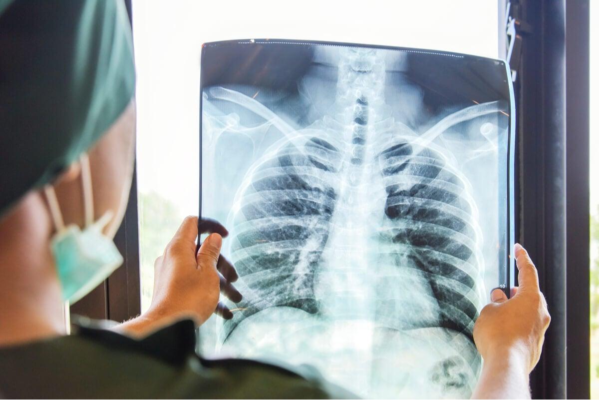 Diagnóstico de tuberculosis con radiografía.