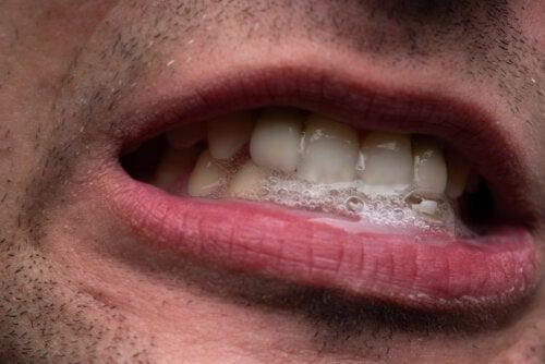 Sialorrea: ¿qué es y cuál es su tratamiento?