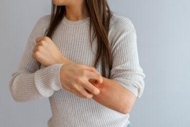 ¿Qué debes saber sobre el linfoma cutáneo?