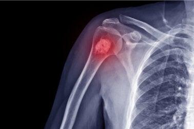 Osteosarcoma en niños: síntomas, causas y tratamiento