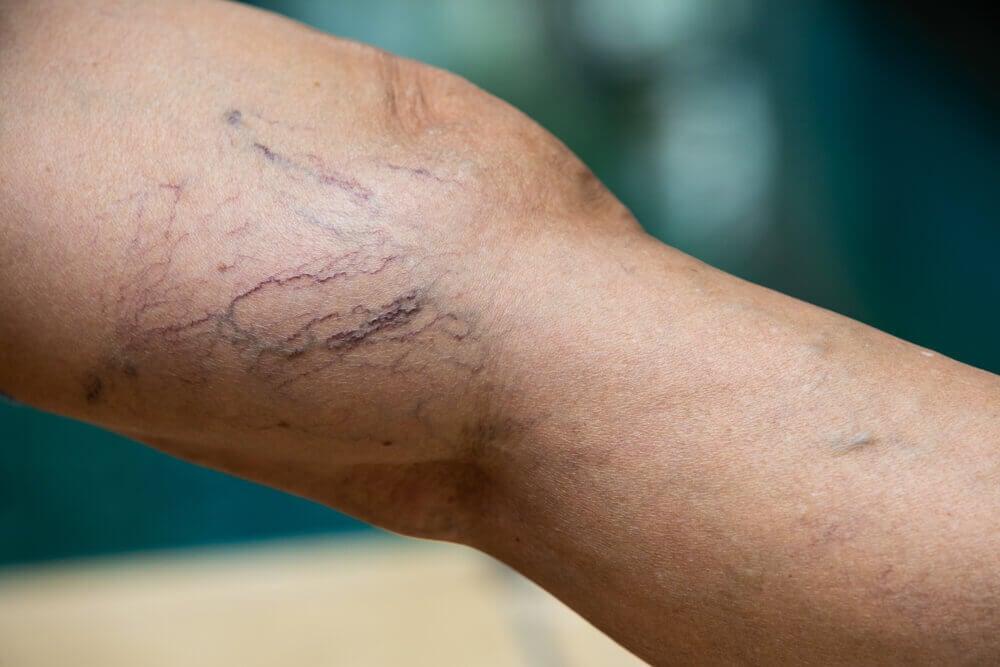 Recuperación y riesgos en el tratamiento