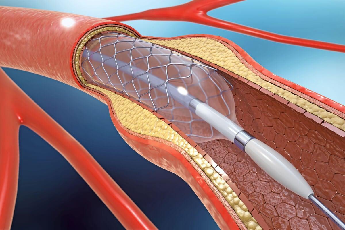 Arterias con arterioesclerosis.