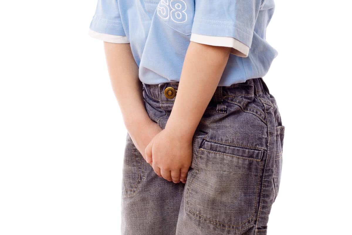 Balanitis con dolor en infante.