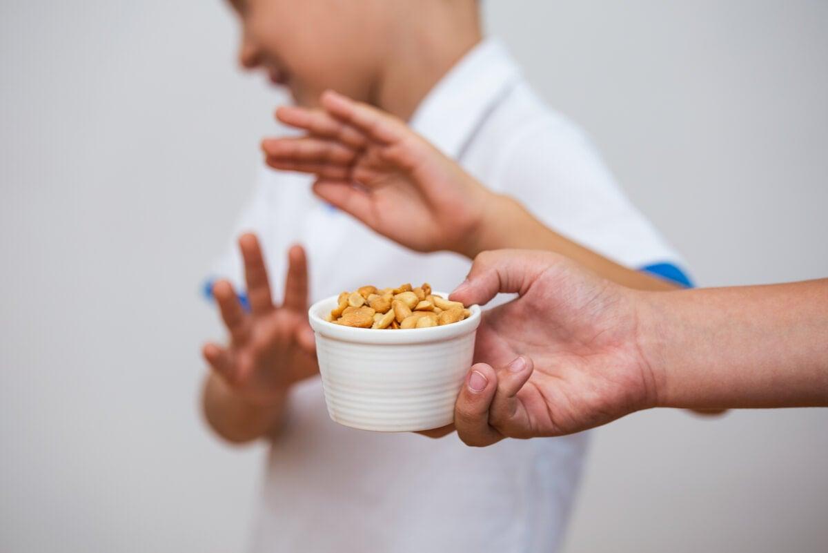 Niño con alergia a los frutos secos.