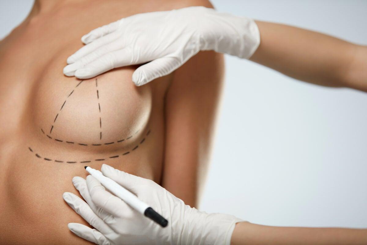 Líneas de cirugía para mastopexia.
