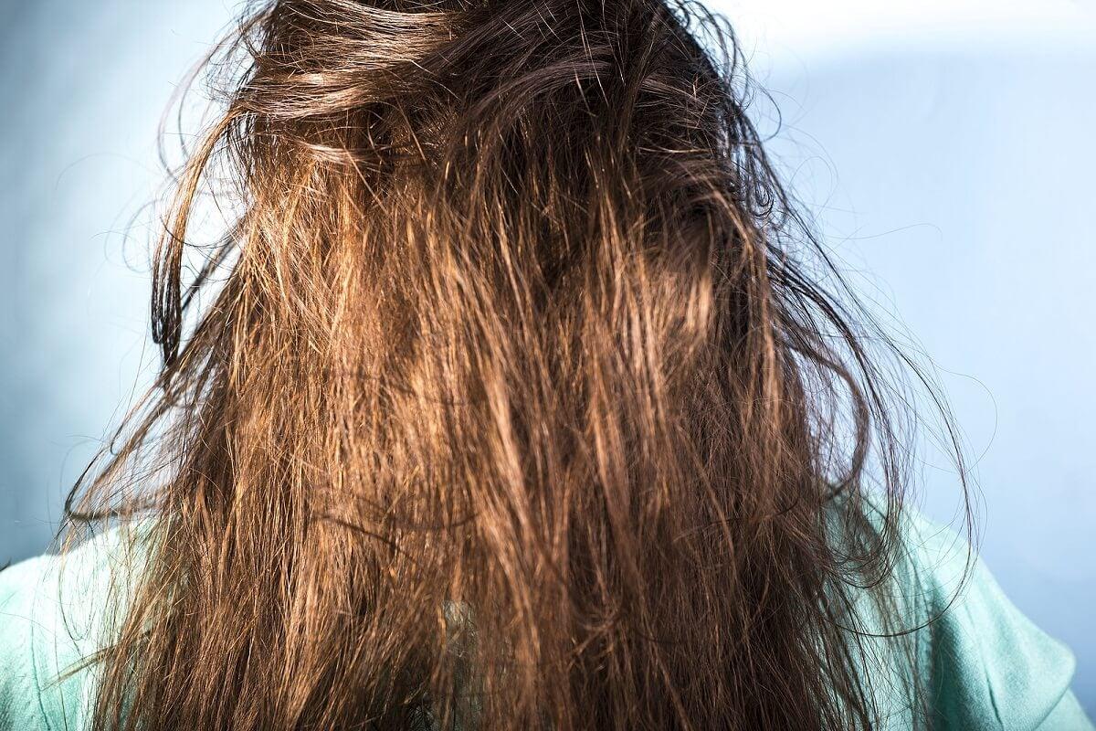 ¿Cuáles son las causas del cabello graso?