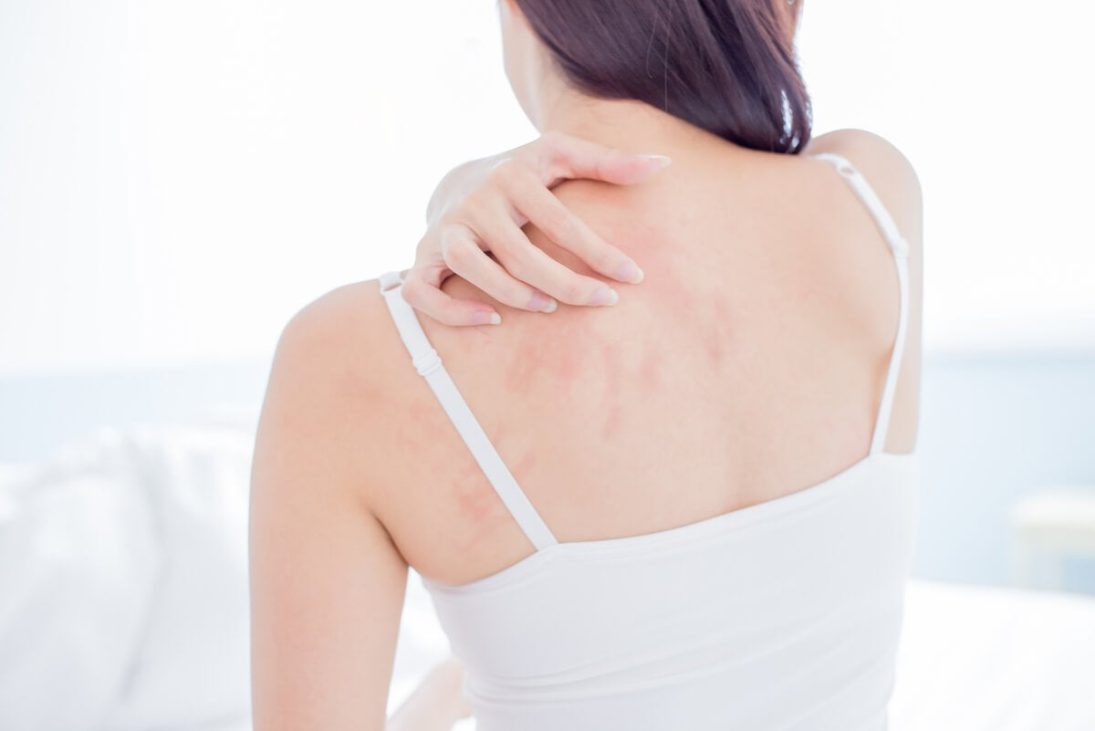 Mujer se rasca la espalda.