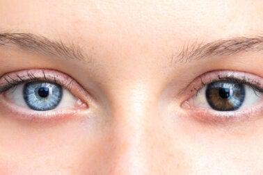 ¿Cambios en el color de los ojos? ¡Puede ser preocupante!
