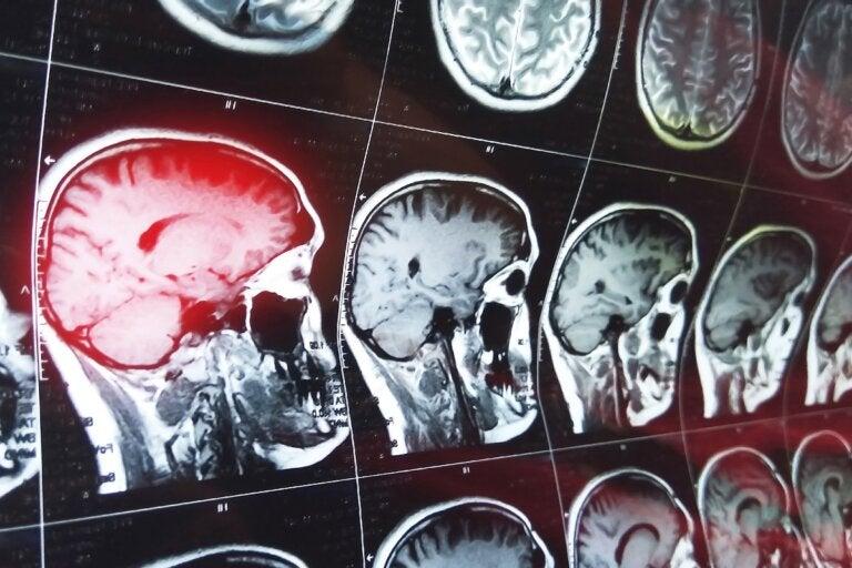 ¿Qué es la amnesia retrógrada?