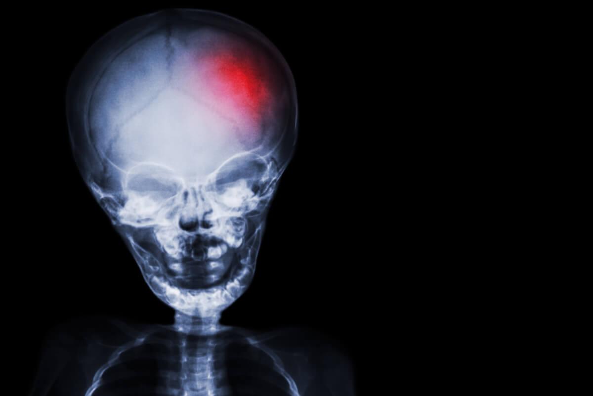 Radiografía de cráneo.