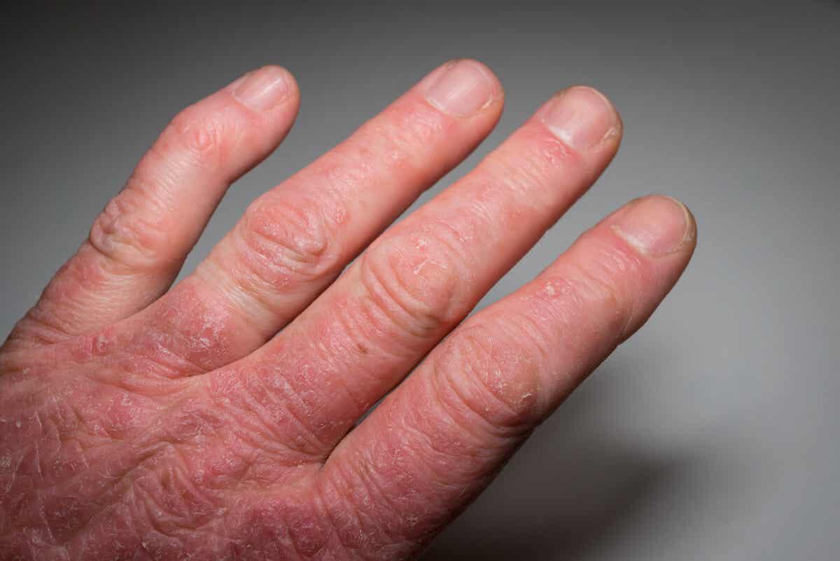 Fenómeno de Raynaud en la esclerodermia.