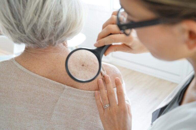 Lentigo: ¿qué es y cuál es su tratamiento?