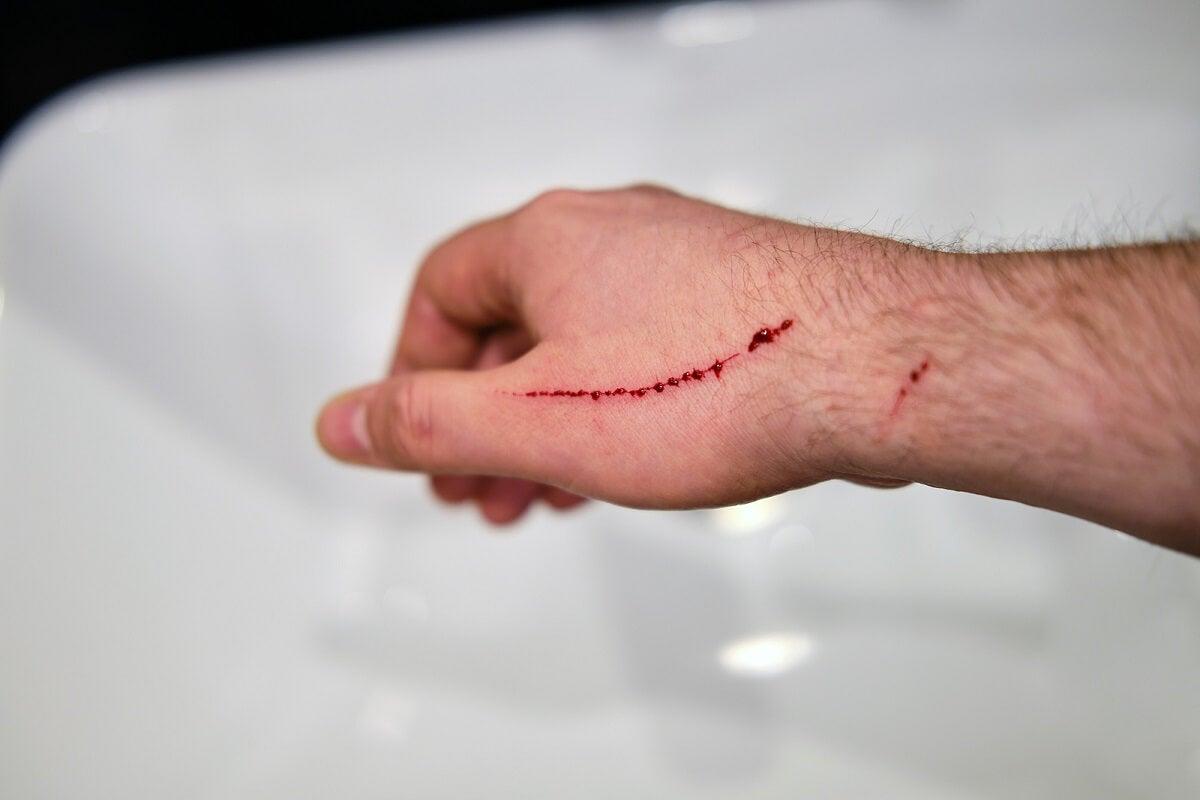Herida que necesita sutura quirúrgica.