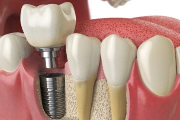 ¿Qué debes saber sobre las complicaciones de los implantes dentales?
