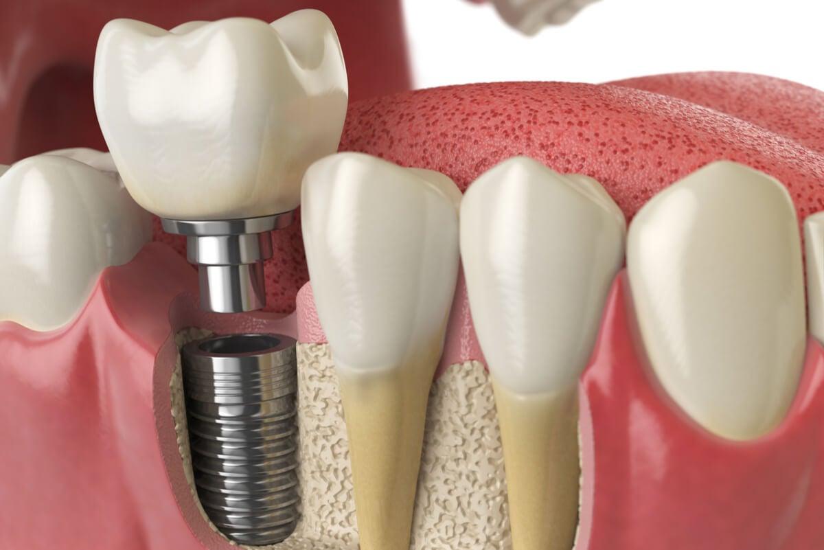 Implante dental.