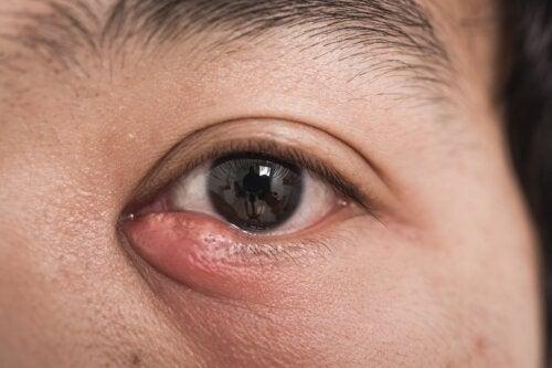 Dacriocistitis: causas y tratamientos