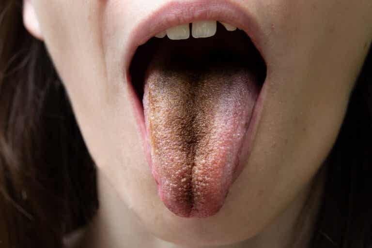Lengua vellosa negra: causas, síntomas y consejos