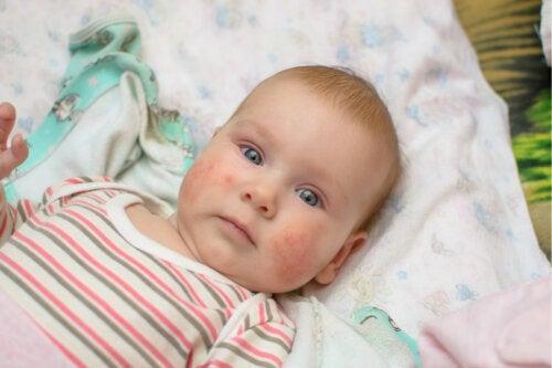 ¿Qué es la mastocitosis en niños?