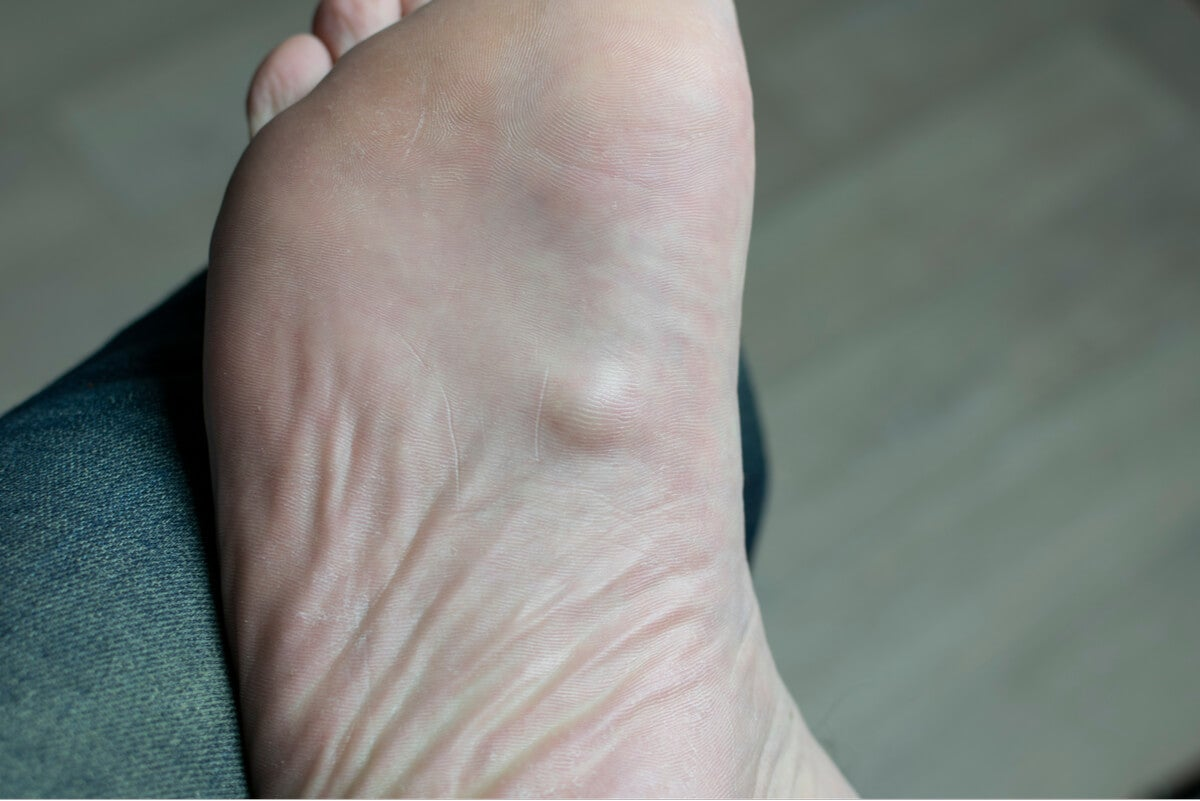 Dolor en la planta del pie.