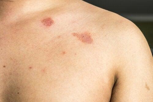 Pitiriasis versicolor: ¿en qué consiste?