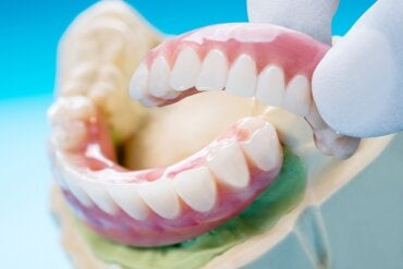 Puente dental: tipos, beneficios y desventajas