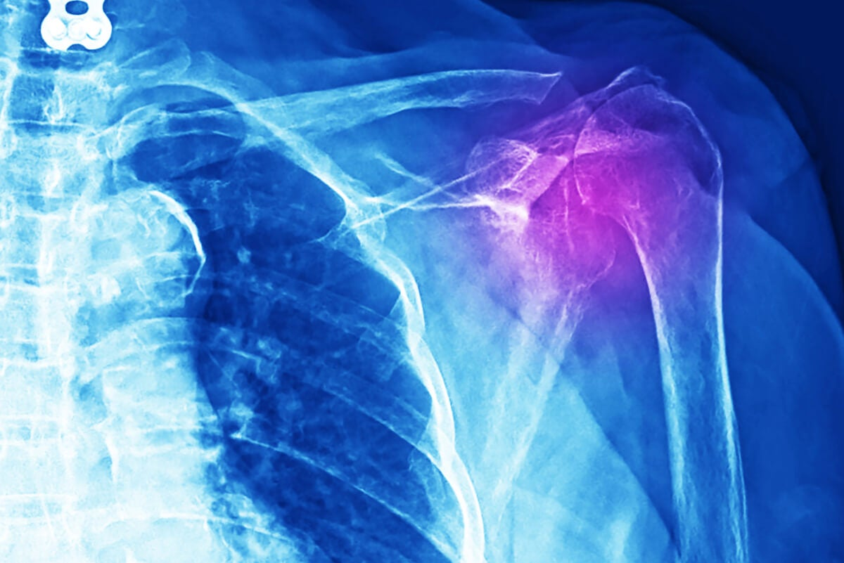 Radiografía de hombro doloroso.