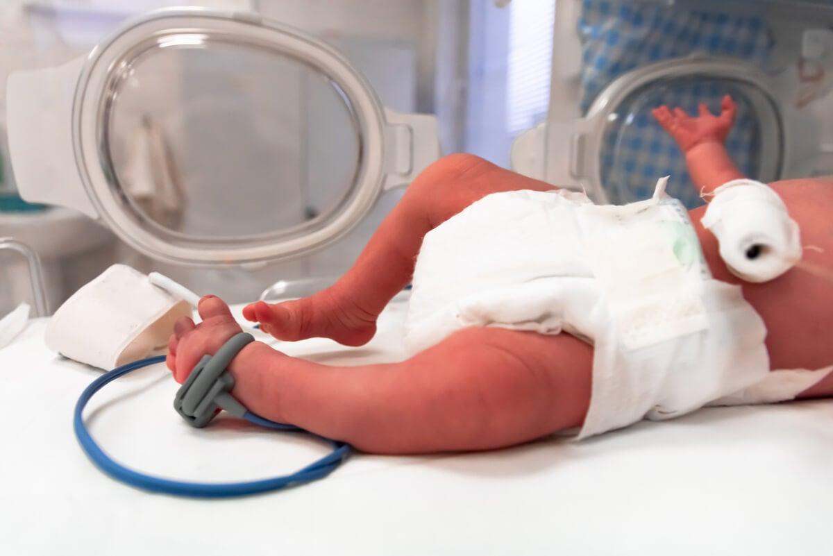 Recién nacido prematuro.